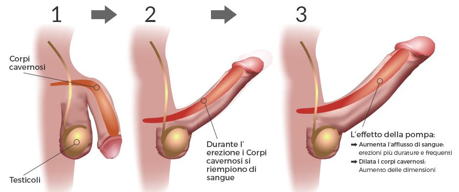 danni al pene in erezione