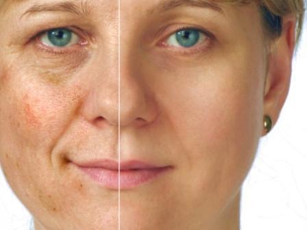 Giulia effetto Collagena Lumiskin prima e dopo