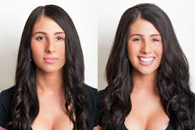 anche le donne possono beneficiare dell'infoltimento dei capelli