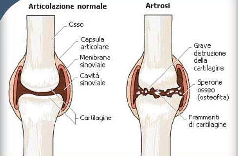 artrosi schema