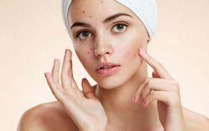 acne in età adulta