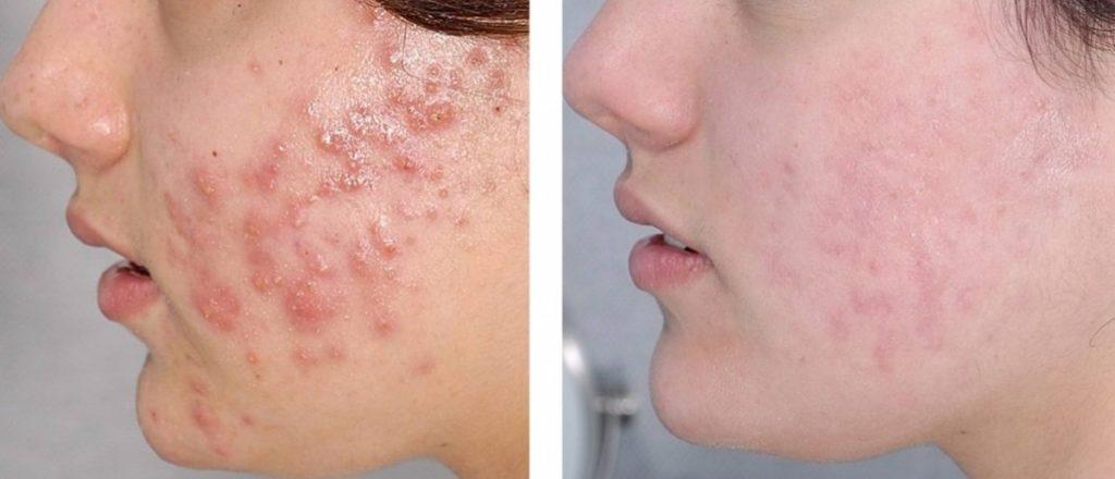 dove curare l'acne prima e dopo