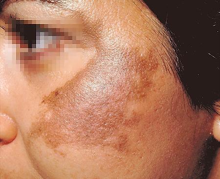 Come cè una pigmentazione su pelle di faccia