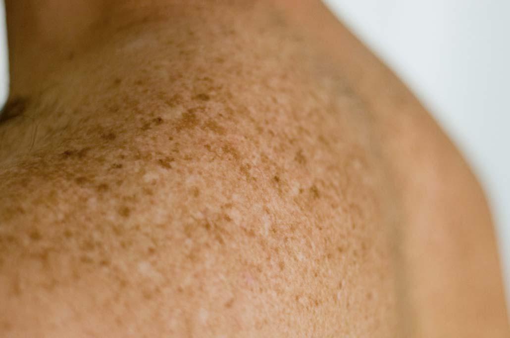 Come togliere macchie scure su pelle di gambe