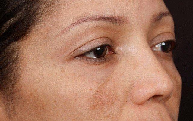 Decolorazione di pelle di faccia che in profondità si stacca