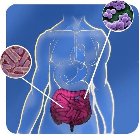 microbiota intestinale per curare il crohn