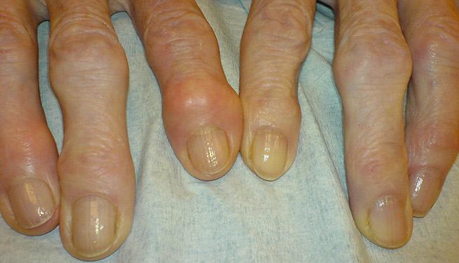 artrosi dita della mano