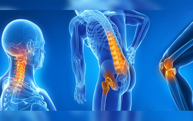 Artrosi Sintomi E Cure