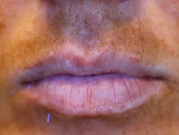 melasma labbra da stress
