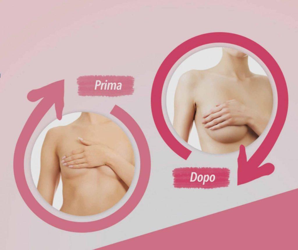 senomax prima e dopo l'utilizzo