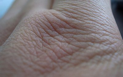 inestetismi della pelle