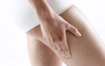 Nascondere la cellulite