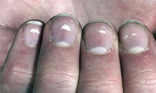 Macchie bianche sulle unghie: cause e rimedi