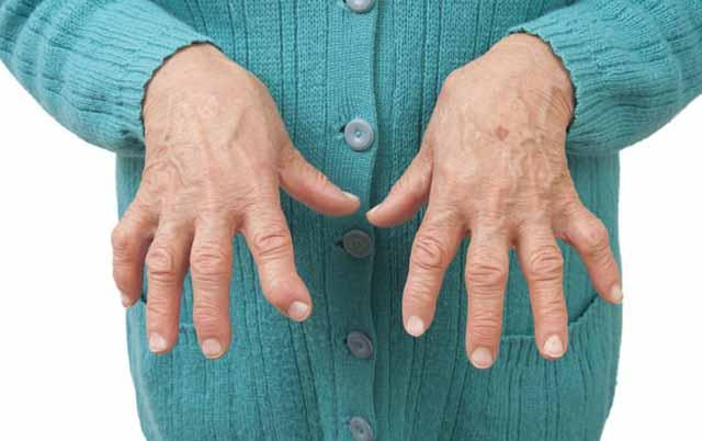 Artite reumatoide una patologia sempre più diffusa: come conviverci?