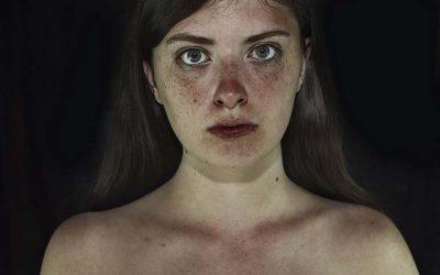 Eliminare le imperfezioni della pelle in maniera naturale