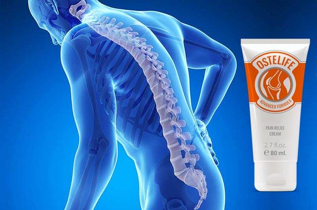 Ostelife Crema gel cura i dolori ? Costo opinioni e dove comprarla