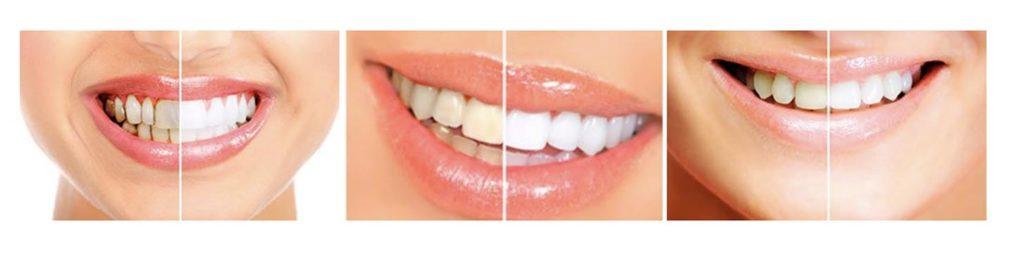 Prima E Dopo Dental White Stripes