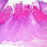 Mollusco contagioso cos'è e come eliminarlo. Sintomi e trattamenti