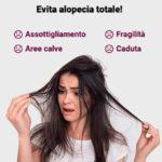 Spray anti caduta Smart hair: è efficace? Costo e sito ufficiale