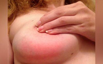 sintomi mastite