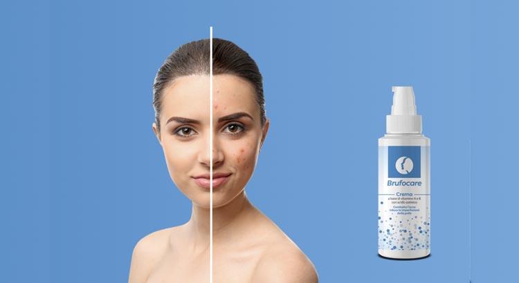 Brufocare crema contro brufoli ed acne. Funziona? Prezzo e dove trovarla