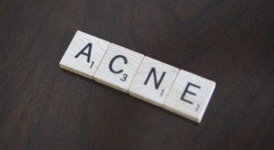 Acido azelaico e acne
