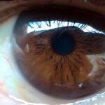 Esame del fondo oculare: che cos'è e a cosa serve?