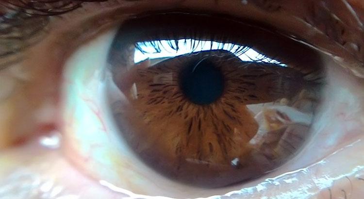 Fondo Oculare
